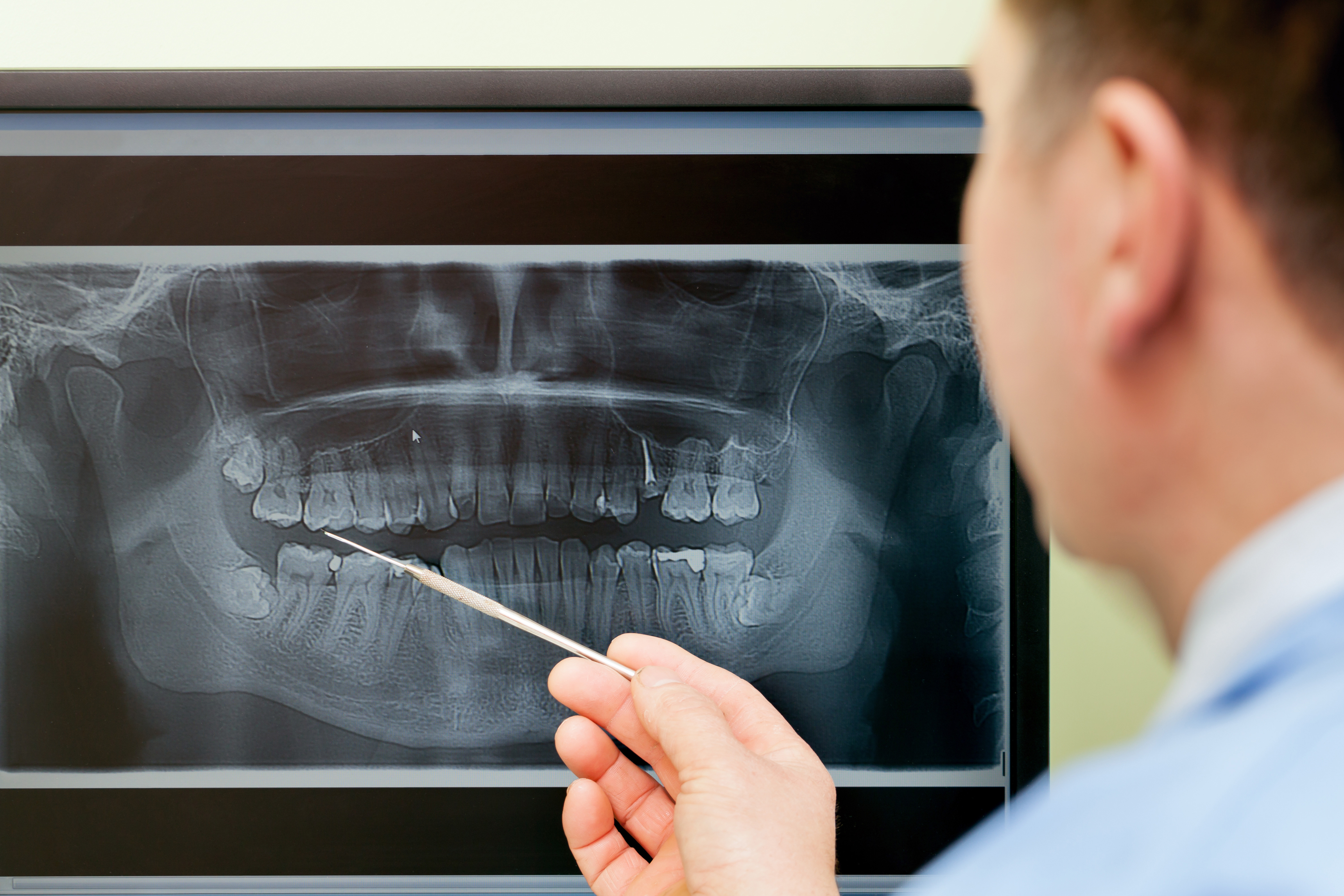 Oral Surgery Image 1