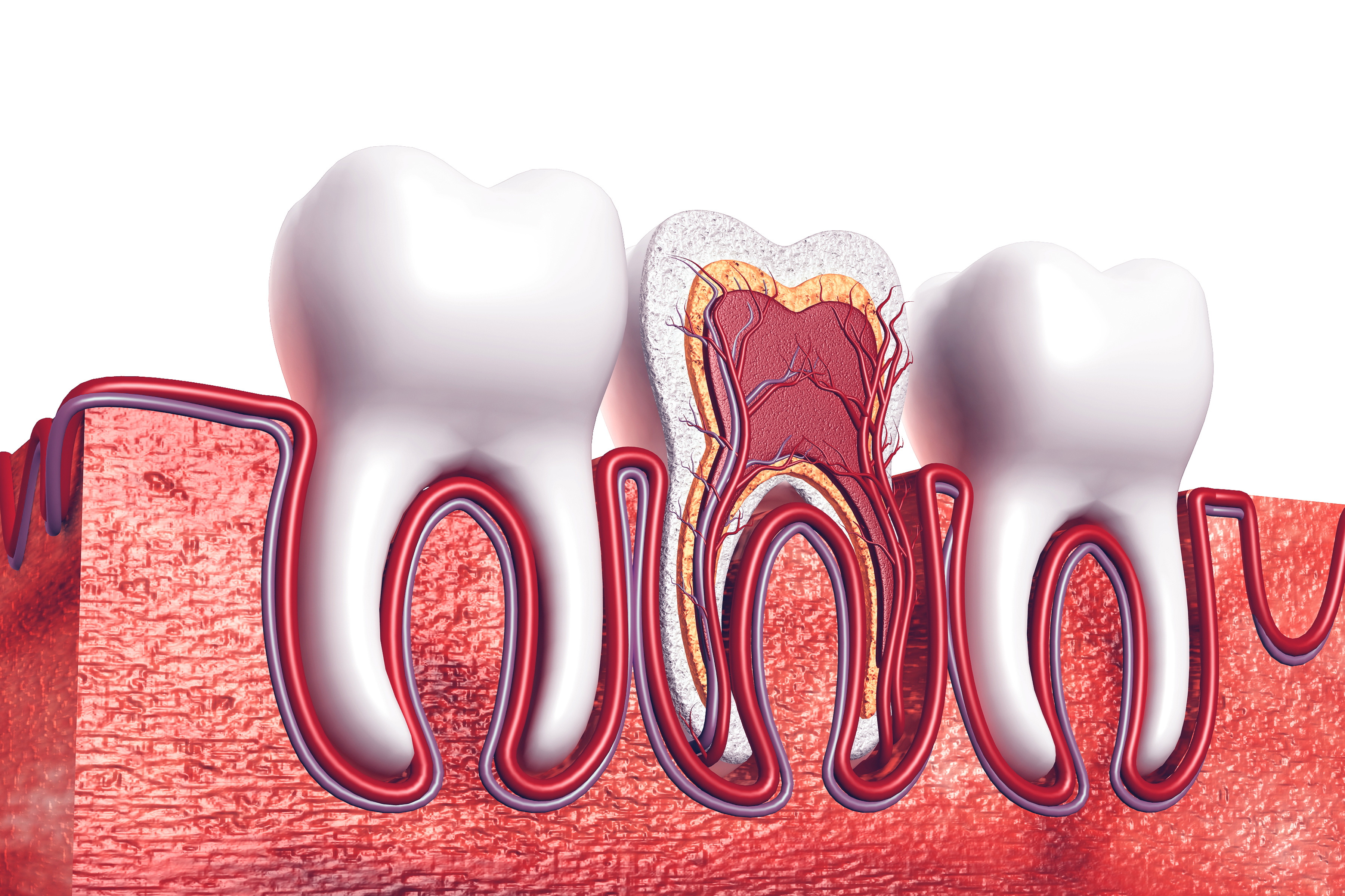 Root Canal Therapy Image 1
